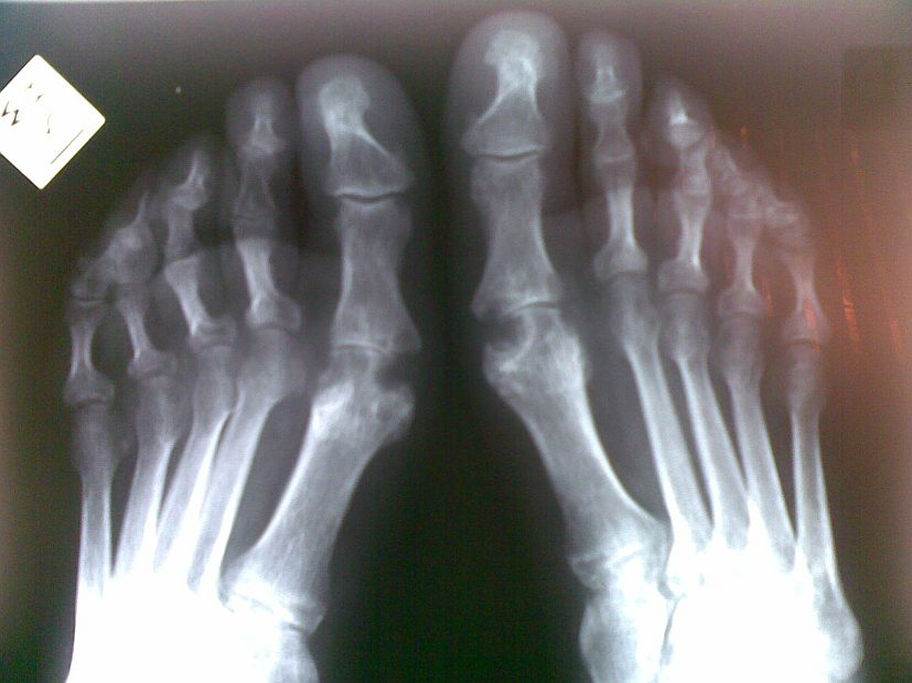 Fish oil and gout all about fish for Fish oil gout