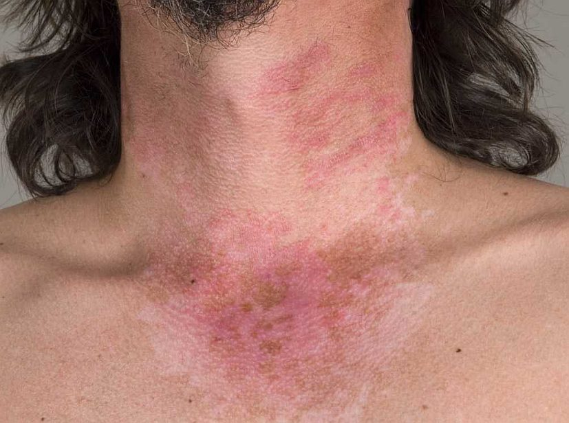 How Lupus Affects Your Skin - WebMD